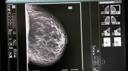 Carreta da mamografia faz exame de prevenção do câncer de mama na Grande SP