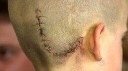 Criança tem alta após acidente com brinquedo, mas tem paralisia facial