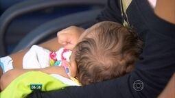No Recife, estudo inédito investiga alterações no cérebro provocadas pela microcefalia