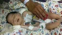 Recém-nascida com problema no coração consegue vaga em hospital