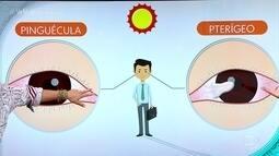 Especialista explica o que é pinguécula, que surge no canto interno do olho