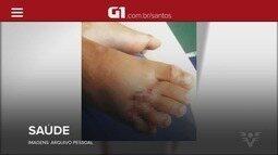 G1 em 1 Minuto: Criança espera por cirurgia e corre o risco de perder o pé