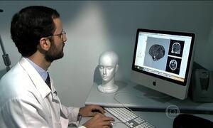 Médicos brasileiros têm sucesso em cirurgia que combate efeitos de AVC