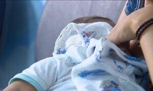 Passa de quatro mil o número de casos de microcefalia no país