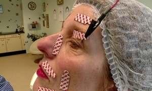 Paralisia facial atinge 80 mil pessoas por ano no Brasil