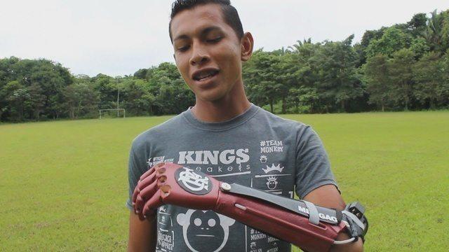 Flamenguista recebe prótese de mão com brasão do clube