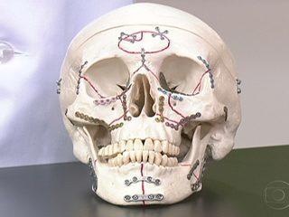 Dente quebrado pode ser reimplantado se levado ao hospital rapidamente