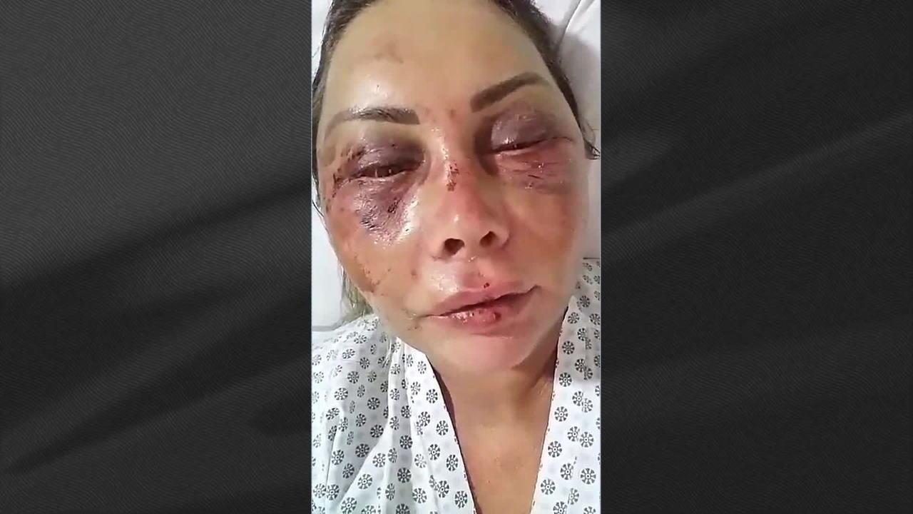fa6533c34 Mulher espancada por lutador de jiu-jitsu sai da UTI - GloboNews - Estúdio  i - Catálogo de Vídeos