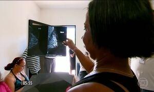 Mutirão para cirurgia de reconstrução da mama vai rodar 18 estados
