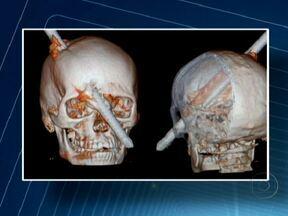 Homem atingido por vergalhão está estável e continua internado no Hospital Miguel Couto - O operário de construção civil teve o crânio perfurado por um vergalhão. De acordo com os médicos, ele fará uma tomografia e pode ter alta em uma semana.