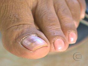 Tratamento contra micose leva meses para dar resultado - A Josi Monteiro, de Porto Velho, não consegue usar sapato aberto porque tem vergonha dos próprios pés. Ela luta contra o problema há três anos, e já fez muitos tratamentos, mas nenhum ainda deu certo.