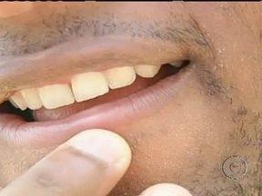 Espremer espinha pode causar celulite facial - O jogador de futebol Dedé espremeu uma espinha no rosto, enquanto estava dirigindo, e ficou com celulite facial. O atleta precisou ficar quatro dias no hospital e até correu risco de morte.