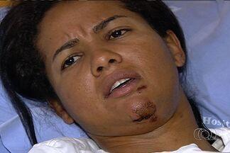 Ciclista goiana deve receber alta médica neste fim de semana, em Goiânia - Clemilda Fernandes, melhor ciclista do Brasil na atualidade, sofreu um acidente quando treinava, na BR-153. Ela sofreu cortes profundos na coluna e na cabeça.