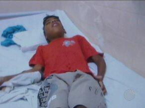 Família luta para conseguir transferência de garoto com tumor no rosto, no sudoeste da BA - Jovem da cidade de Cândido Sales está internado no Hospital Geral de Vitória da Conquista há um mês, mas cirurgia só é feita em Salvador.