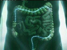 Prevenção de câncer no intestino deve ser feita a partir dos 50 anos - Quem já teve caso de câncer colorretal na família deve fazer os exames a partir dos 40 anos. Se a doença for detectada precocemente, as chances de sobrevida são muito altas. Saiba também o que é a doença de Crohn.