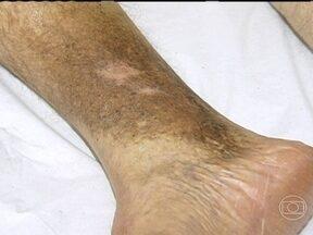 Dermatite ocre é um agravamento das varizes - A dermatite ocre se manifesta na pele, mas decorre de uma insuficiência venosa mais avançada. Com as varizes, a pressão das veias aumenta. Quando isso estrapola para os vasos menores, algumas hemácias podem sair e chegar à camada da pele.
