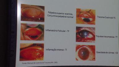 Censo vai detectar a incidência do tracoma na população pernambucana - Pesquisa é feita por técnicos treinados pela Fundação Oswaldo Cruz.