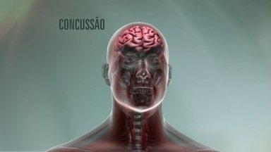Pesquisadores pedem mudanças para proteger jogadores de futebol de pancadas na cabeça - Choques na cabeça pode levar jogadores de futebol a desenvolverem a CTE, doença com características similares ao Alzheimer.