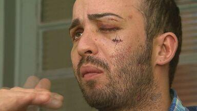 Cliente de boate é espancado durante briga em Ribeirão Preto, SP - Após ser espancado, cabeleireiro deve perder a visão do olho esquerdo.