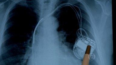 Médicos usam material vencido em cirurgias de coração para lucrar - As novas denúncias da máfia das próteses foram reveladas pelo Fantástico. As comissões podem chegar a R$480 mil por ano. Em Uberlândia, marcapassos eram colocados nos pacientes sem necessidade.