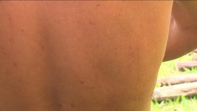 Moradores de ocupação dizem que foram torturados por PMs no RS - Polícia Civil investiga ação da Brigada Militar em terreno invadido. Vítimas diz que teriam sido espancadas e torturadas com sacos plásticos.
