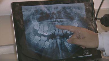 Falha genética agenesia atinge 20% da população brasileira - A falha é falta de dentes na boca. A recomendação dos especialistas é que o primeiro exame para diagnóstico seja feito aos 6 anos de idade, na troca de dentes.