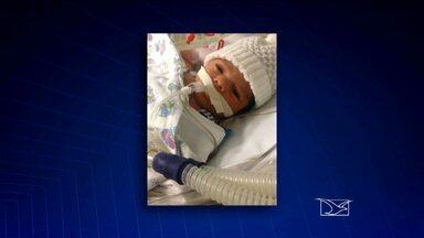 Justiça do Maranhão determina Governo custeie tratamento de bebê - Nessa segunda-feira (18) a Justiça determinou que o menino continue o tratamento no Hospital Beneficência Portuguesa, na capital paulista