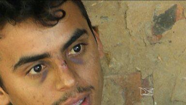 Jovem denuncia espancamento por parte de homens da Polícia Militar em Bacabal - O jovem relata que não havia parado em uma blitz. Segundo testemunhas, homens da força tática teriam espancado o jovem na porta da casa dos avós dele.