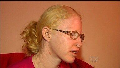 Mulher albina tem auxílio doença suspenso pelo INSS, em Rio Verde - Mesmo possuindo só 20% da visão, ela teve o benefício suspenso e não consegue resolver o problema, já que o órgão está em greve.