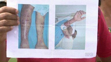 Pedreiro leva 500 pontos em ataque de cachorros - O homem de 42 anos foi atacado em Ivaiporã. Para a polícia, são os mesmos cães que haviam ferido uma mulher em abril deste ano.
