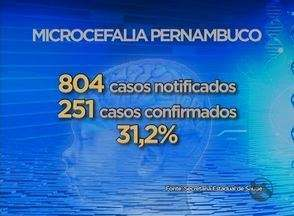 Pernambuco tem 804 casos notificados de microcefalia - Registros são até 5 de dezembro.