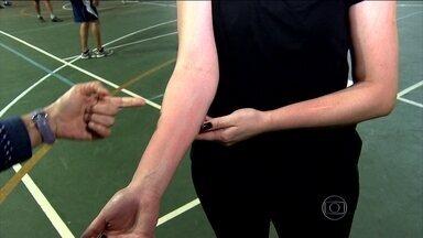 Médica explica como diferenciar as manchas na pele - A pediatra, Ana Escobar, fala sobre as manchas na pele no momento em que a bola bate com força no braço. Veja.