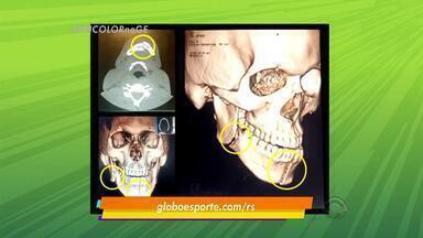 Exame mostra mandíbula de Bolaños dividida após cotovelada de William - Equatoriano passará por cirurgia na próxima quarta-feira em que serão colocadas placas de metal.