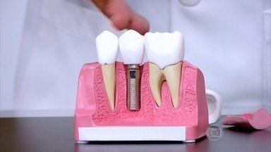 Quem tem dentadura pode fazer implante - O dentista Maurício Querido explica que, para fazer o implante, precisa ter um volume ósseo suficiente. A mastigação estimula o osso, fazendo com que o organismo envie mais cálcio para o local.