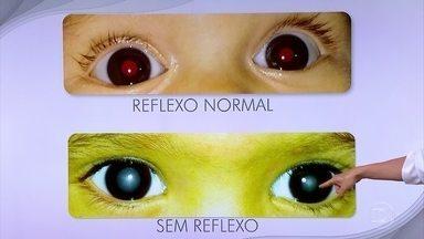 Teste do olhinho pode ser feito pelo pediatra - O teste do olhinho é simples, barato, indolor e não precisa ser feito por oftalmologista.