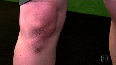 Aprenda a evitar os joelhos escuros - O joelho não foi feito para ser bonito. Ele está sempre flexionando e por isso tem um excesso de pele e não tem muita lubrificação. Pelo atrito, a pele do joelho é naturalmente mais seca.