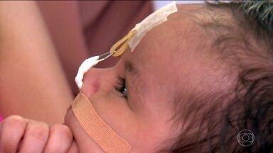 Modelador nasal corrige fissura labial nos primeiros dias de vida - Gustavo nasceu com lábio leporino. A fenda era grande. Depois, foi diminuindo. Um pequeno aparelho foi fundamental para recuperar o rosto da criança. ONo Brasil, de cada 650 bebês, um nasce com a fissura.