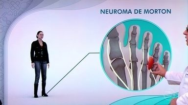 Neuroma de Morton causa dor nos pés e pode estar relacionado com sapatos apertados - Salto alto, sapatos apertados e até o formato dos pés podem deixar os ossos desalinhados.