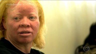 Atendimento especializado e gratuito para albinos é oferecido na Santa Casa de São Paulo - Atendimento para albinos, e de graça, não é comum. Mas há seis anos, na Santa Casa de Misericórdia, em São Paulo, foi criado o programa Pró-Albino. Câncer de pele, falta de vitamina D e problemas de visão são os principais problemas.