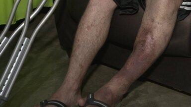 Dois pacientes estão na fila de espera por cirurgia ortopédica - O menino Gustavo quebrou o fêmur há um ano e precisa fazer uma cirurgia para voltar a andar. O Walter foi atropelado há três anos e corre até risco de ter que amputar a perna.