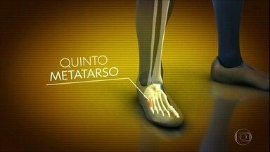 Neymar passa por cirurgia bem-sucedida no pé direito - Neymar passa por cirurgia bem-sucedida no pé direito