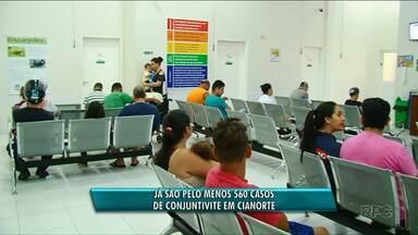 Cianorte registra 560 casos de conjutivite - Surto da doença começou no fim de semana.