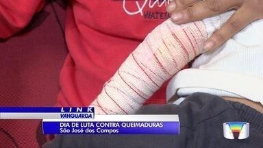 Hoje é o dia nacional da luta contra queimaduras - Em São José 85% dos acidentes acontecem dentro de casa.