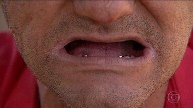 Pacientes de implantes dentários de Hidrolândia (GO) estão com o tratamento incompleto - Ministério Público pediu explicações para a prefeitura e para o Ministério da Saúde.