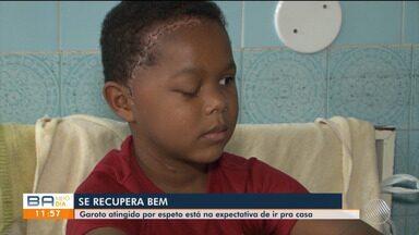 Garoto atingido por espeto segue internado em hospital de Itabuna - Ele necessita fazer um exame para ter a alta médica. Apesar do problema, o menino não apresenta sequelas.
