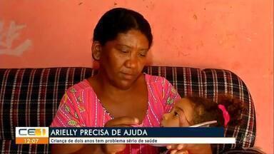 Criança de dois anos passa por sérios problemas de saúde e precisa de ajuda - Saiba mais em g1.com.br/ce