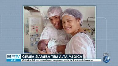 Gêmea siamesa unida pela tórax tem alta médica após 2 meses em Salvador - A outra irmã teve complicações e acabou morrendo.