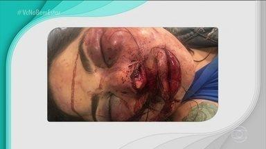 Mulher é espancada e abandonada em estrada no ES - A vítima, Jane Cherubim, foi encontrada com vários ferimentos no rosto e está internada, mas fora de perigo. Agressor é procurado por tentativa de feminicídio.