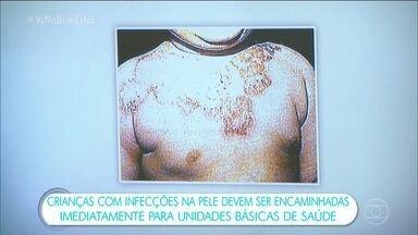 Casos de impetigo preocupam autoridades de saúde de Santa Catarina - A doença atinge pele, boca e o sistema respiratório. O impetigo é mais comum em crianças entre dois e seis anos, e acontece especialmente nos meses mais quentes e úmidos.