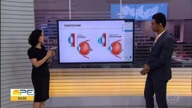 Oftamologista explica o que é ceratocone e como identificar - Junho é o mês de alerta para a prevenção da doença.
